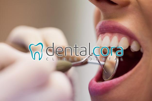limpieza dental en fuenlabrada
