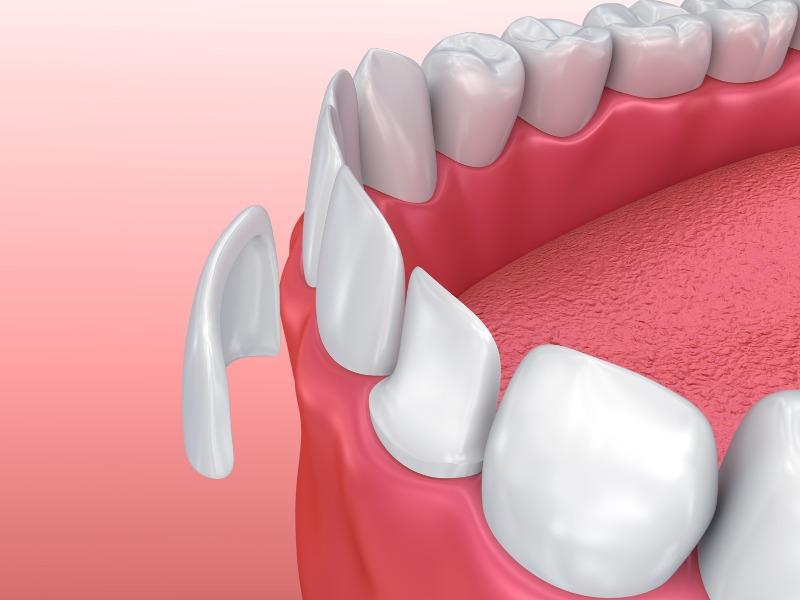 Carillas dentales en fuenlabrada